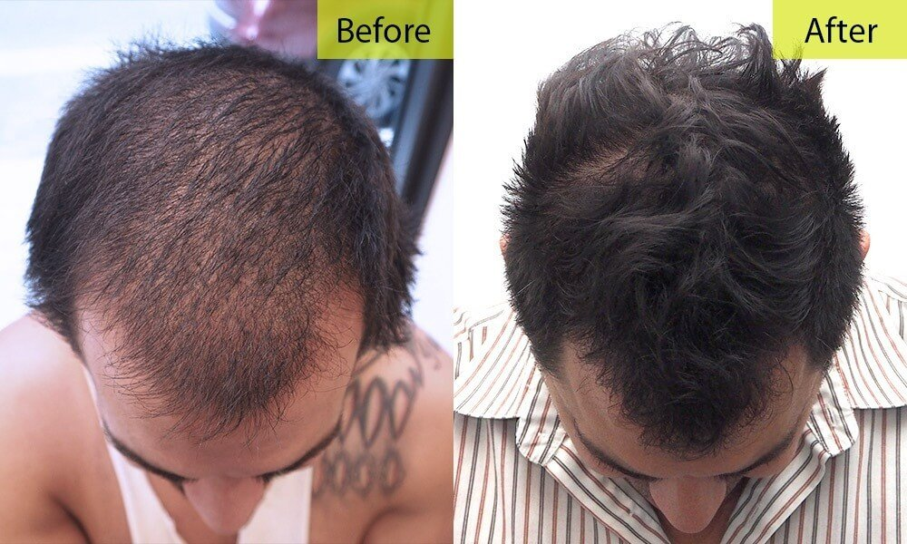 Before And After Gallery - Maxim Medical