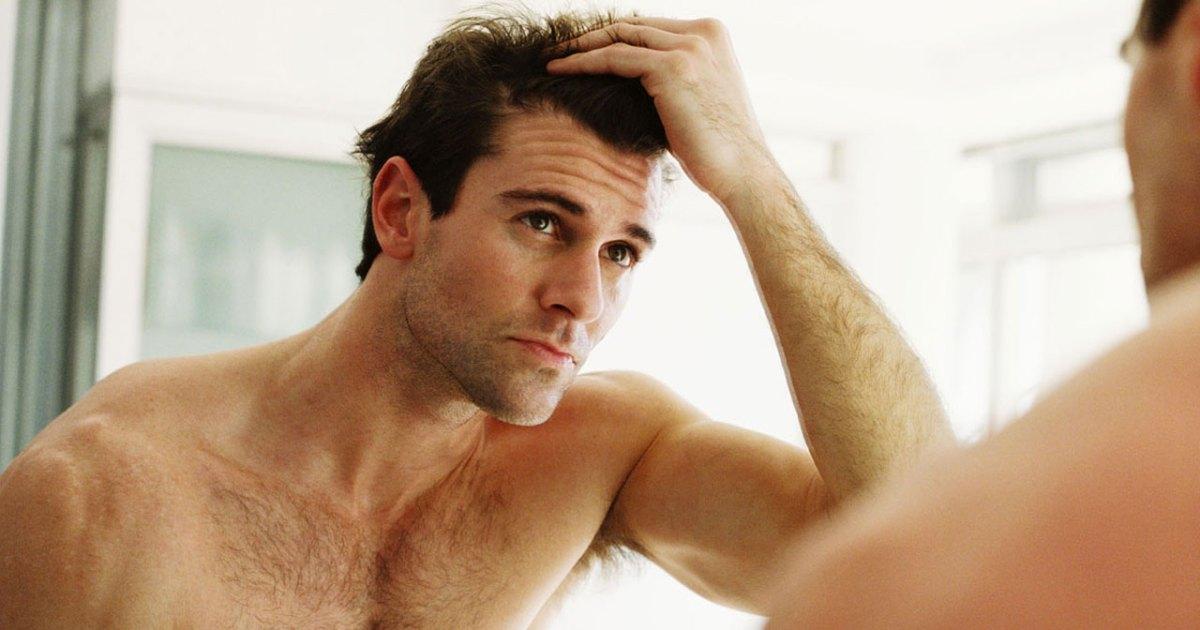 guy hairloss
